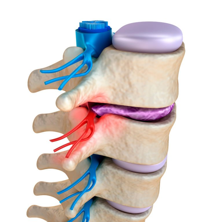 Pinched Nerve Symptoms And Treatments Minnesota Spine Institute