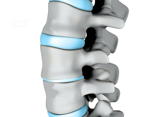 Degenerative disc disease is a condition in which natural, age-related wear-and-tear on a disc and spine causes possible pain, instability, and other symptoms.