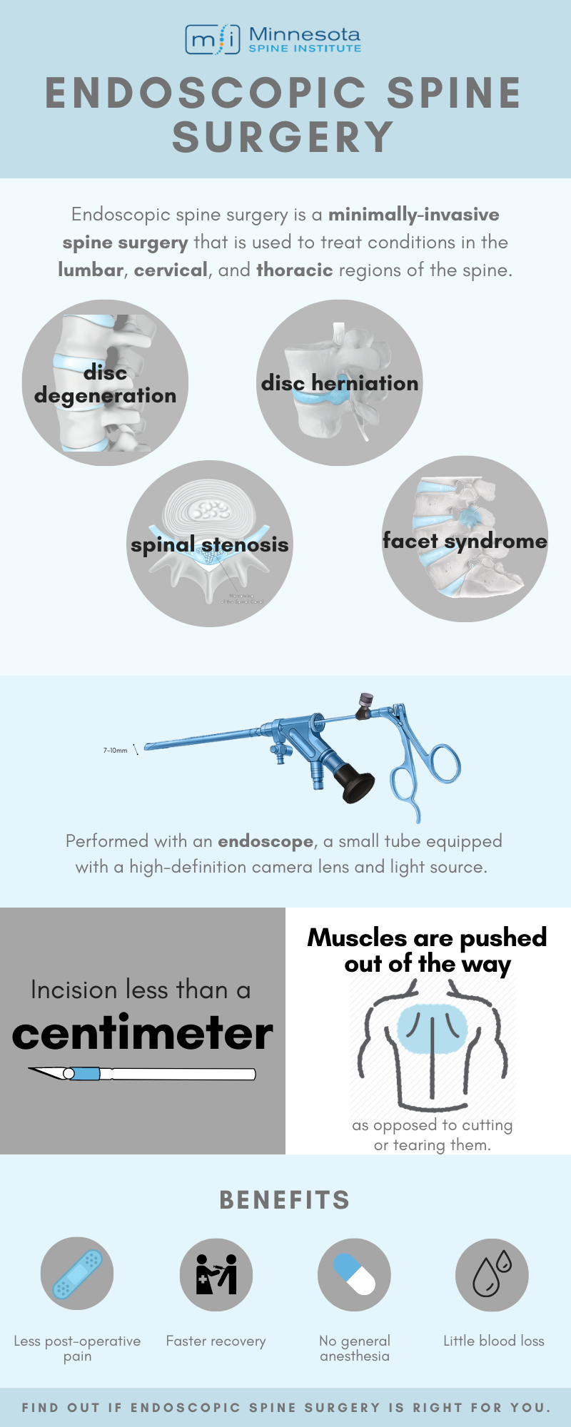 Endoscopic Spine Surgery infograph