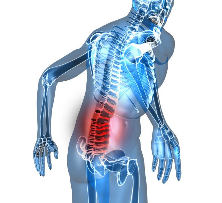 an overview of lumbar stenosis minnesota spine institute