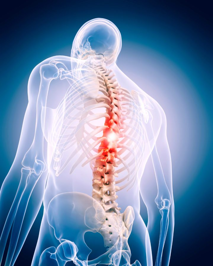 Spinal Back Pain