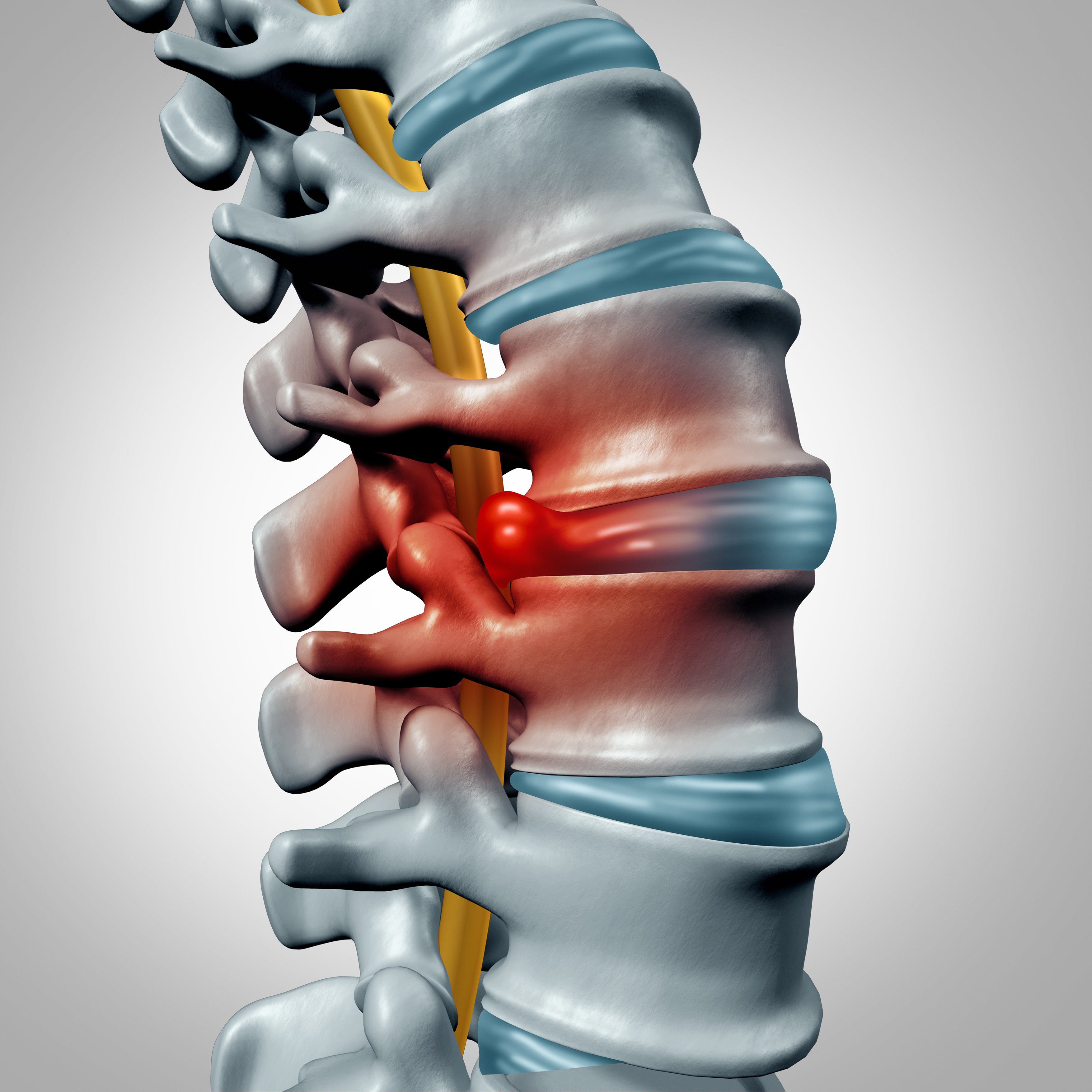 How Do I Heal My Moderate Herniated Disc At L5 S1 Minnesota Spine