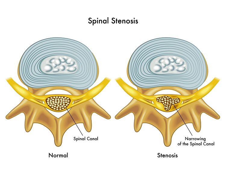 effects of spinal stenosis